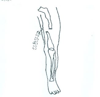 (i) what type of injury is shown in the diagram? [1 mark]